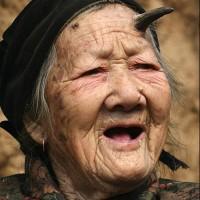 Imagine Femeia careia i-a crescut un corn in frunte