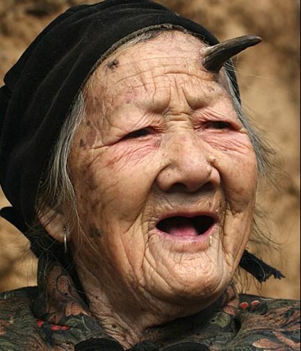 21 Femeia careia i a crescut un corn in frunte