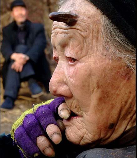 31 Femeia careia i a crescut un corn in frunte