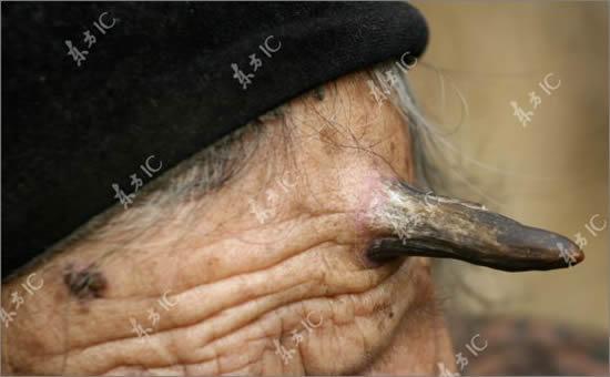 woman with horn21 Femeia careia i a crescut un corn in frunte