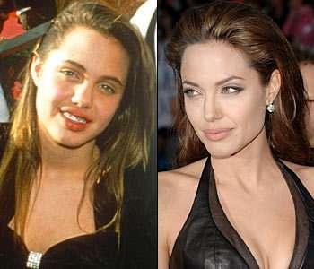 Cum arătau vedetele înainte de operaţiile estetice - vedetepenet.ro